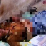 Sering Bertengkar, Pria di Jombang Tusuk Istri Lalu Coba Bunuh